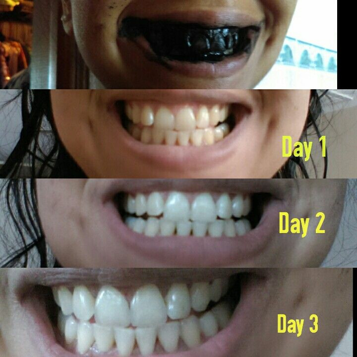 Best ideas about Charcoal Teeth Whitening DIY . Save or Pin Best 20 Activated Charcoal Teeth ideas on Pinterest Now.