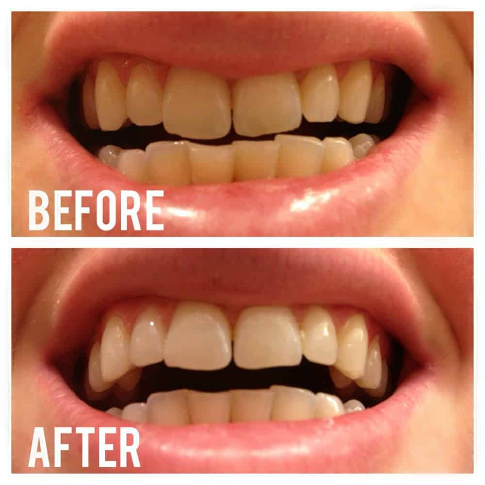 Best ideas about Charcoal Teeth Whitening DIY . Save or Pin Whitening Your Teeth Naturally With Activated Charcoal Now.