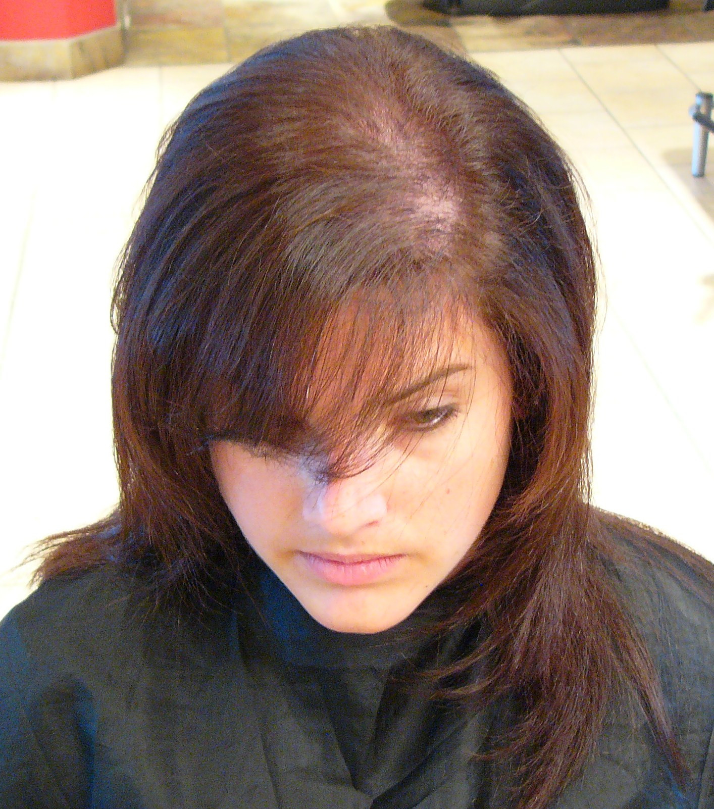 Best ideas about Hairstyles Female Pattern Baldness . Save or Pin Volluma Confronts Social Taboo of Women s Hair Loss Now.