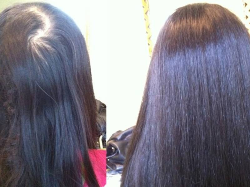 Best ideas about Hairstyles Female Pattern Baldness . Save or Pin Male Pattern Baldness Solution Now.