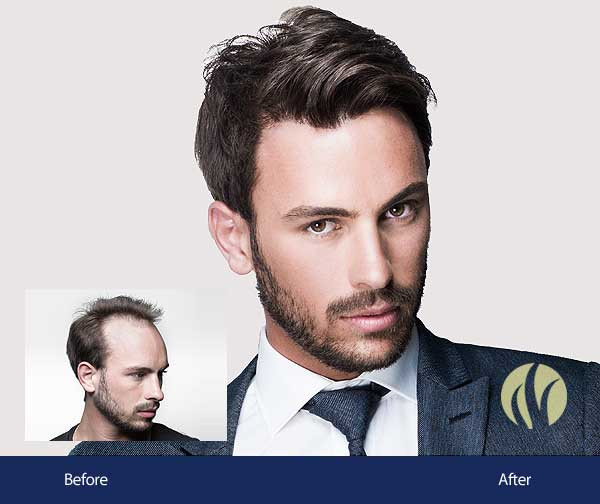 Best ideas about Mens Haircuts Minneapolis . Save or Pin Men s Hair Replacement Minneapolis Now.