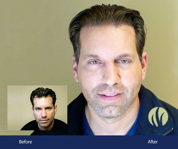 Best ideas about Mens Haircuts Minneapolis . Save or Pin Before and After Men s Gallery Now.